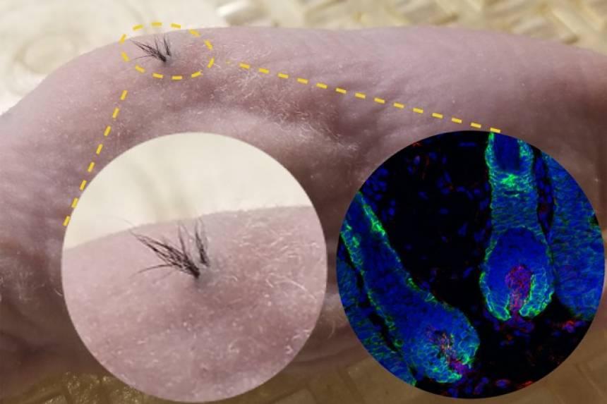 Cientistas descobrem novo método que pode ajudar a curar a calvície
