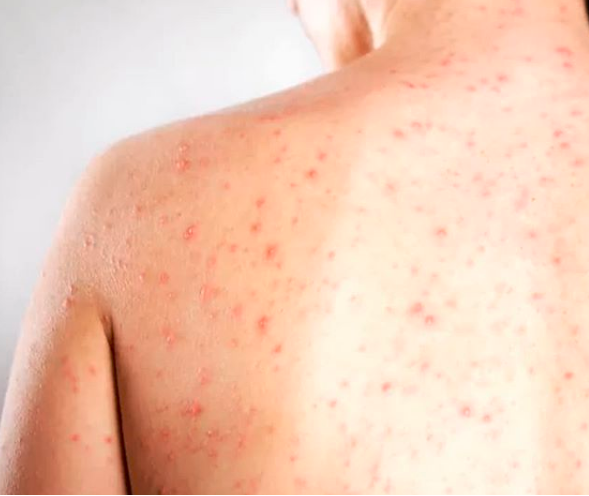 Sesap confirma dois novos casos de sarampo no RN