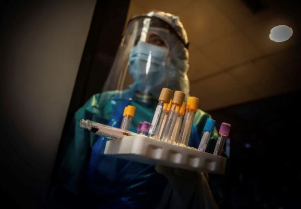 Ministério da Saúde não tem acesso a resultados de exames para Covid-19 de 30% dos laboratórios privados no Brasil