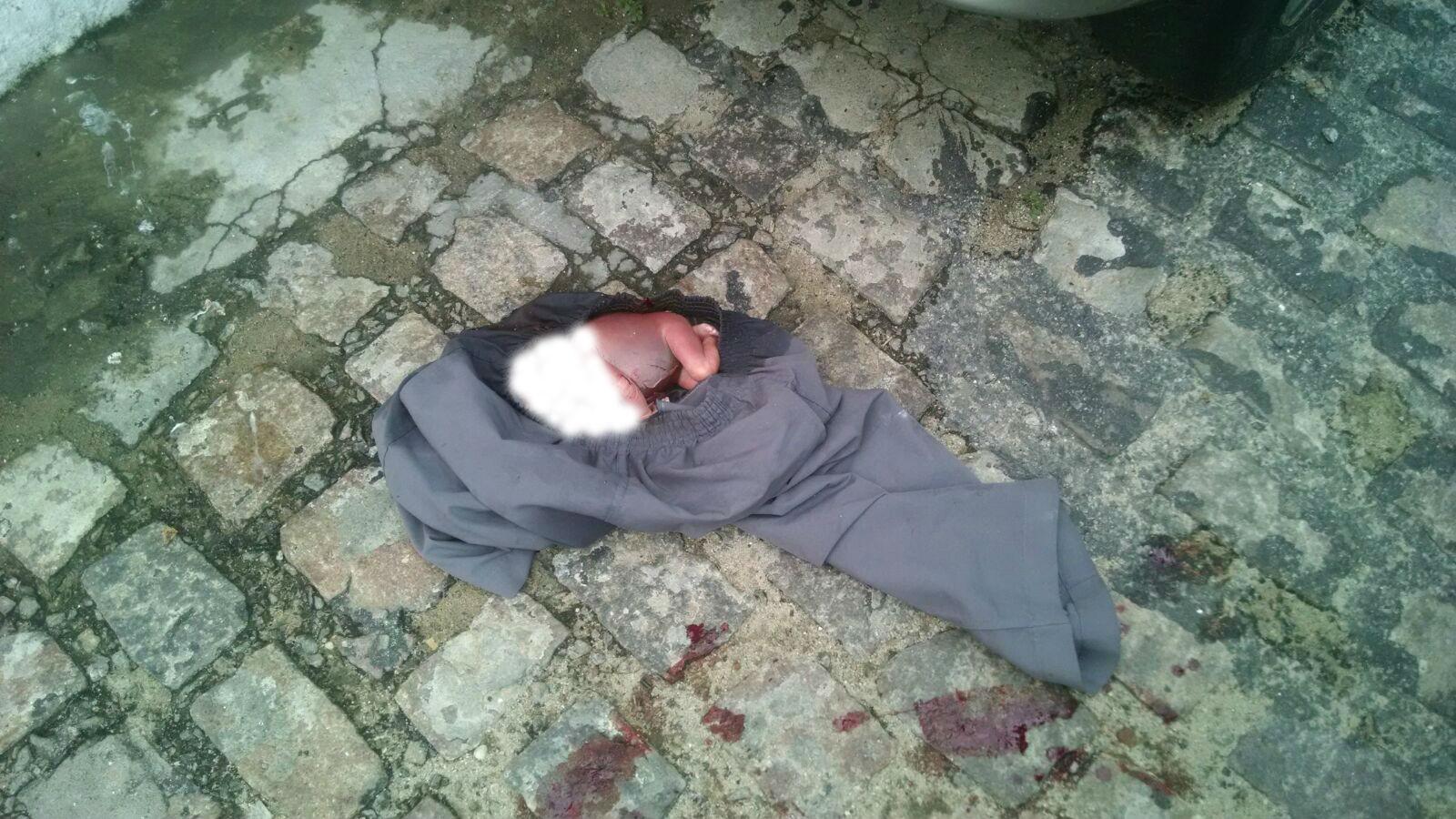 Feto de menina de aproximadamente 7 meses encontrado em areia preta blog do bg - Feto de 4 meses fotos ...