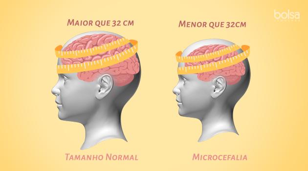 microcefalia_0